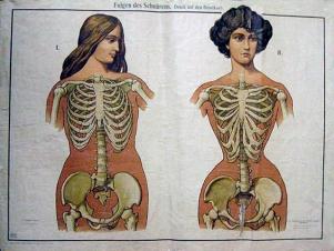Anatomie corset